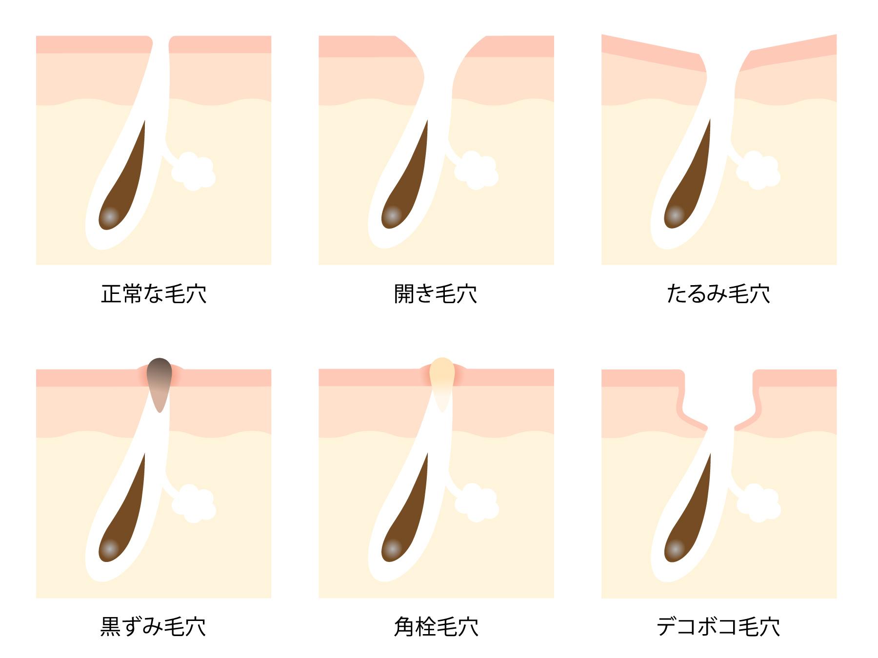 を とる 鼻 方法 黒ずみ の 鼻の黒ずみを取る方法、大人でも中学生でも効果てきめん!